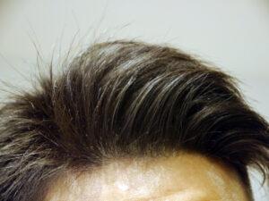 薄毛予防の最大のポイントは頭皮の環境を最善に保つこと